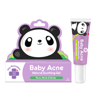 Tiny Buds Baby Acne Natural Soothing Gel